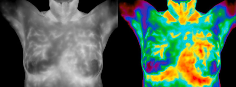 thermography-main-image